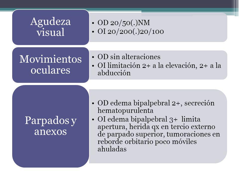 OD 20/50(.)NM OI 20/200(.)20/100 Agudeza visual OD sin alteraciones OI limitación 2+ a la elevación, 2+ a la abducción Movimientos oculares OD edema bipalpebral 2+, secreción hematopurulenta OI edema bipalpebral 3+ limita apertura, herida qx en tercio externo de parpado superior, tumoraciones en reborde orbitario poco móviles ahuladas Parpados y anexos