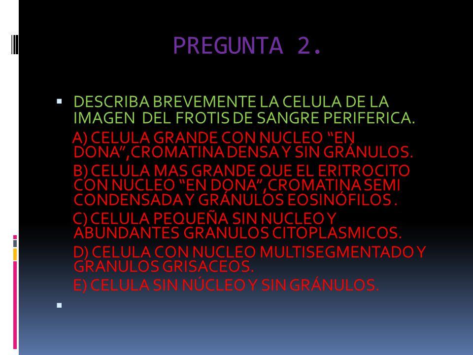 PREGUNTA 2. DESCRIBA BREVEMENTE LA CELULA DE LA IMAGEN DEL FROTIS DE SANGRE PERIFERICA. A) CELULA GRANDE CON NUCLEO EN DONA,CROMATINA DENSA Y SIN GRÁN