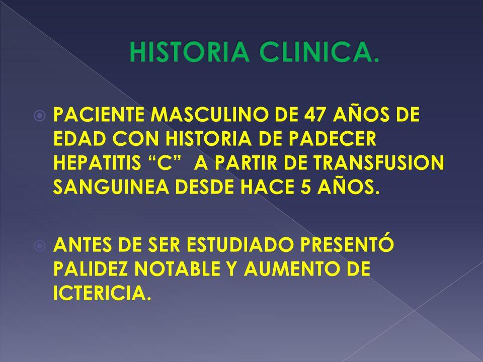 PACIENTE MASCULINO DE 47 AÑOS DE EDAD CON HISTORIA DE PADECER HEPATITIS C A PARTIR DE TRANSFUSION SANGUINEA DESDE HACE 5 AÑOS. ANTES DE SER ESTUDIADO