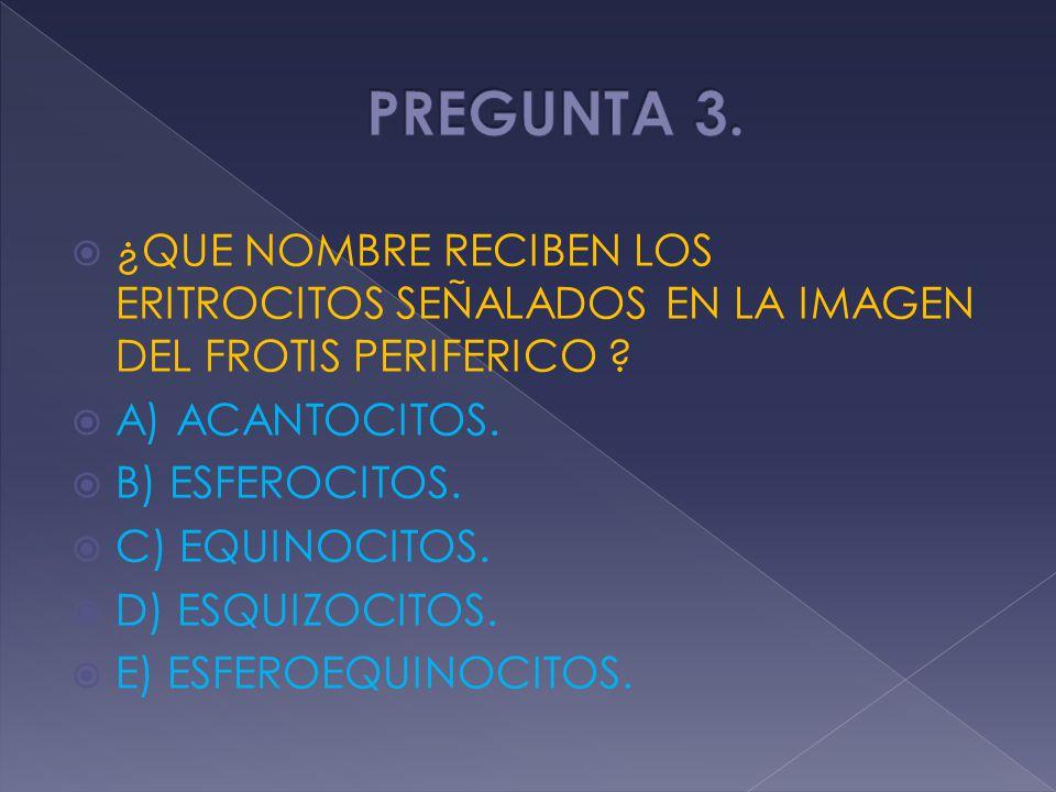 ¿QUE NOMBRE RECIBEN LOS ERITROCITOS SEÑALADOS EN LA IMAGEN DEL FROTIS PERIFERICO ? A) ACANTOCITOS. B) ESFEROCITOS. C) EQUINOCITOS. D) ESQUIZOCITOS. E)