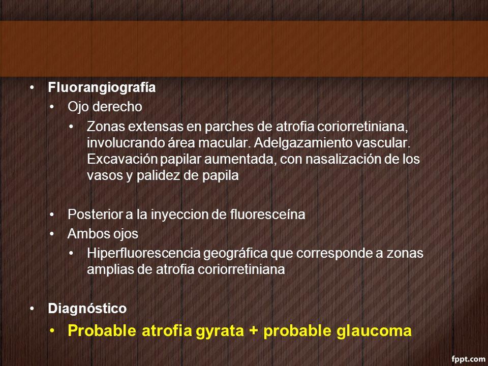 Fluorangiografía Ojo derecho Zonas extensas en parches de atrofia coriorretiniana, involucrando área macular. Adelgazamiento vascular. Excavación papi