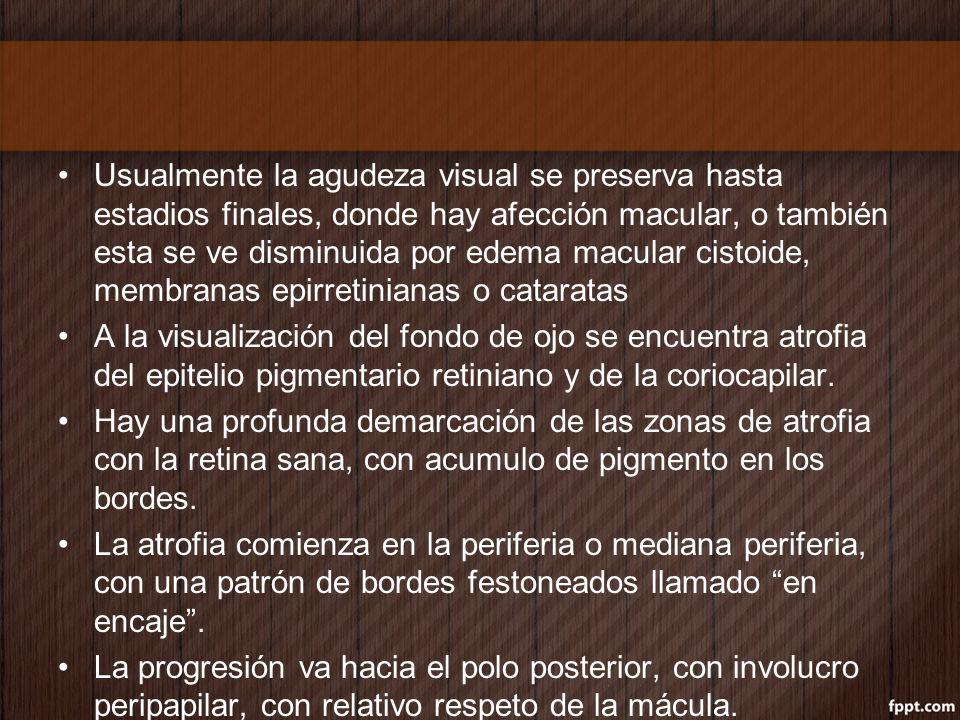 Usualmente la agudeza visual se preserva hasta estadios finales, donde hay afección macular, o también esta se ve disminuida por edema macular cistoid