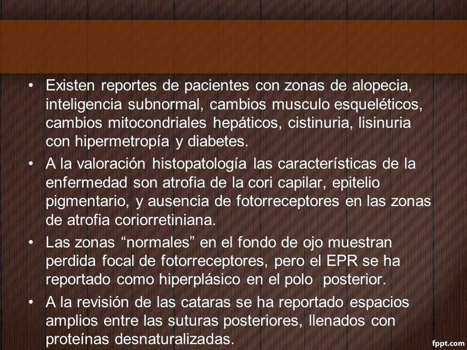 Existen reportes de pacientes con zonas de alopecia, inteligencia subnormal, cambios musculo esqueléticos, cambios mitocondriales hepáticos, cistinuri