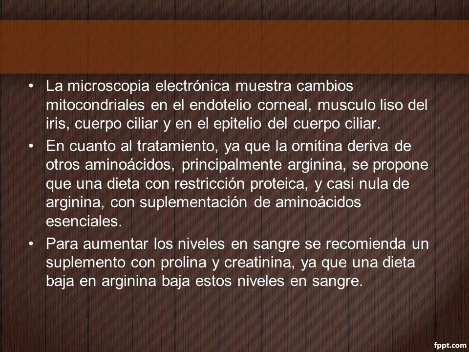La microscopia electrónica muestra cambios mitocondriales en el endotelio corneal, musculo liso del iris, cuerpo ciliar y en el epitelio del cuerpo ci