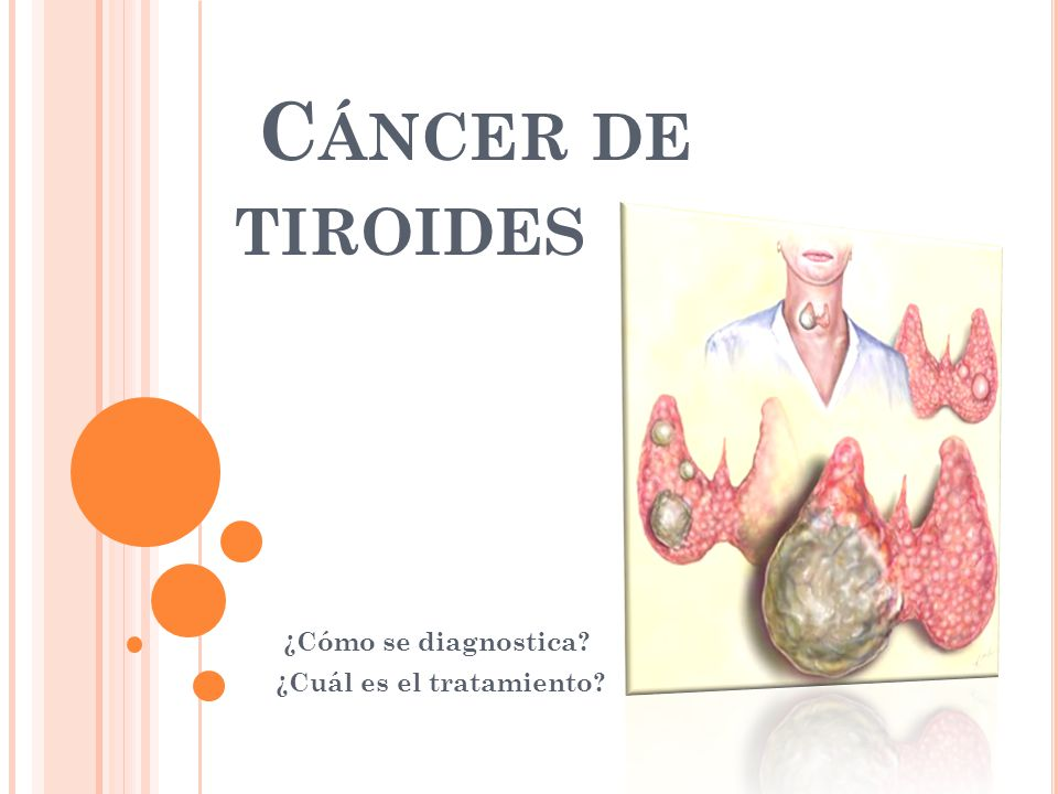 C ÁNCER DE TIROIDES ¿Cómo se diagnostica? ¿Cuál es el tratamiento?