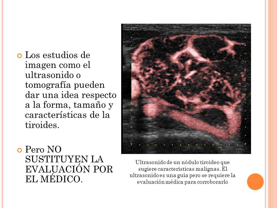 Los estudios de imagen como el ultrasonido o tomografía pueden dar una idea respecto a la forma, tamaño y características de la tiroides.