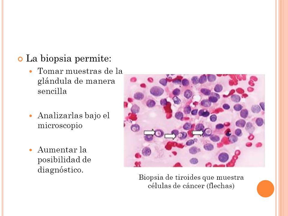 La biopsia permite: Tomar muestras de la glándula de manera sencilla Analizarlas bajo el microscopio Aumentar la posibilidad de diagnóstico.