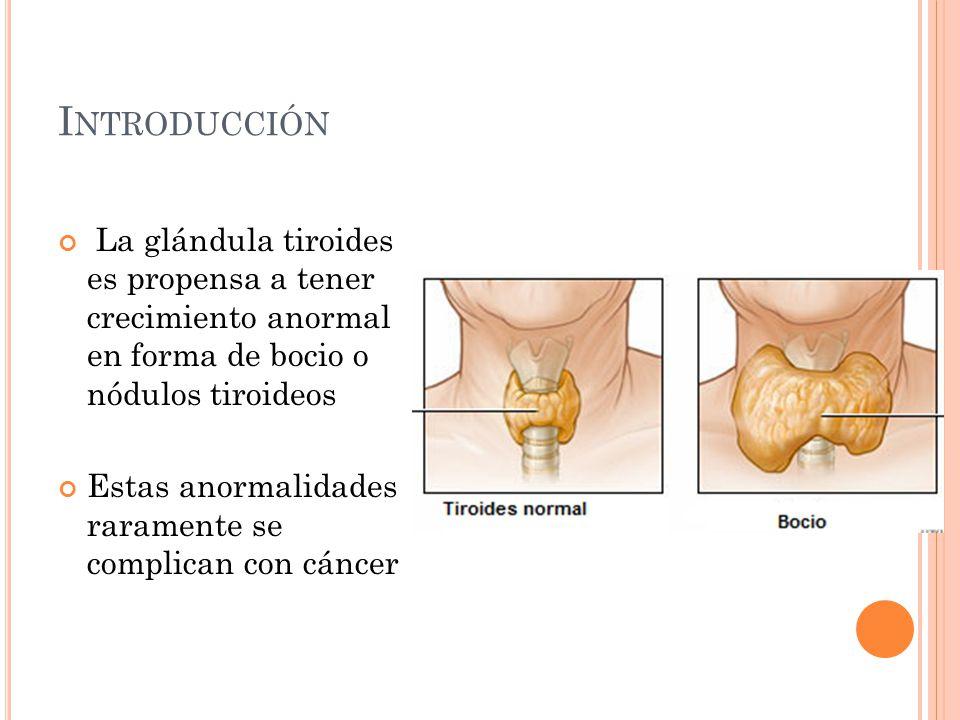 I NTRODUCCIÓN La glándula tiroides es propensa a tener crecimiento anormal en forma de bocio o nódulos tiroideos Estas anormalidades raramente se complican con cáncer