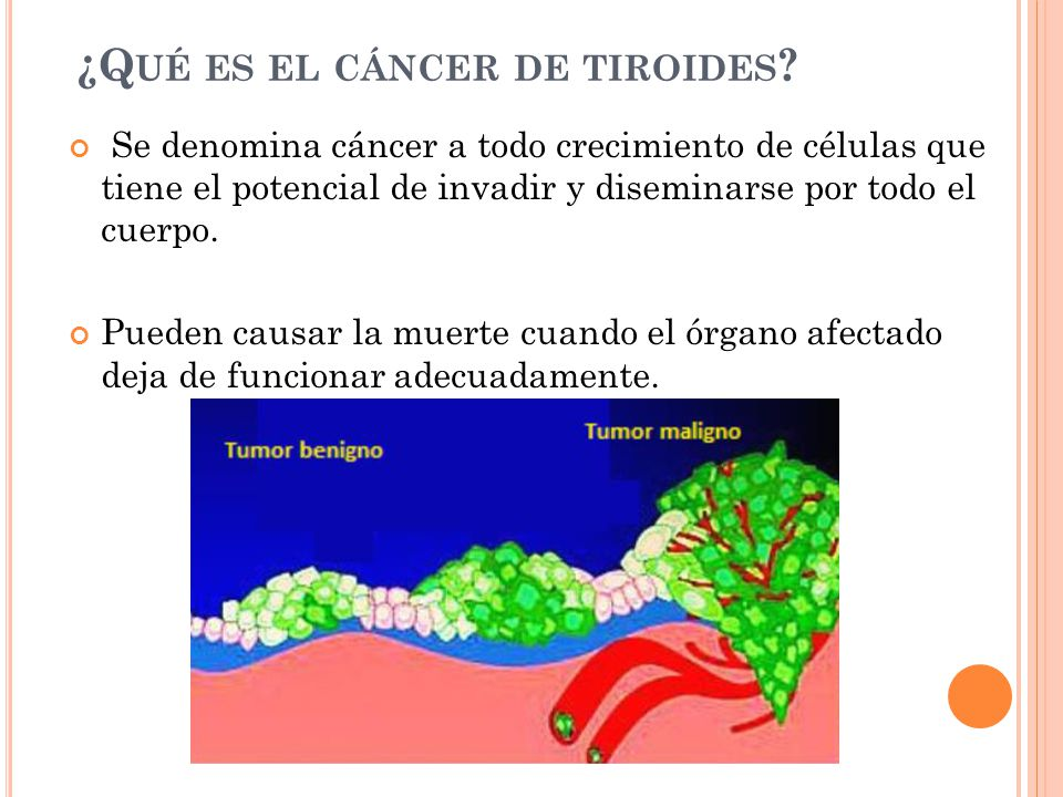 ¿Q UÉ ES EL CÁNCER DE TIROIDES .