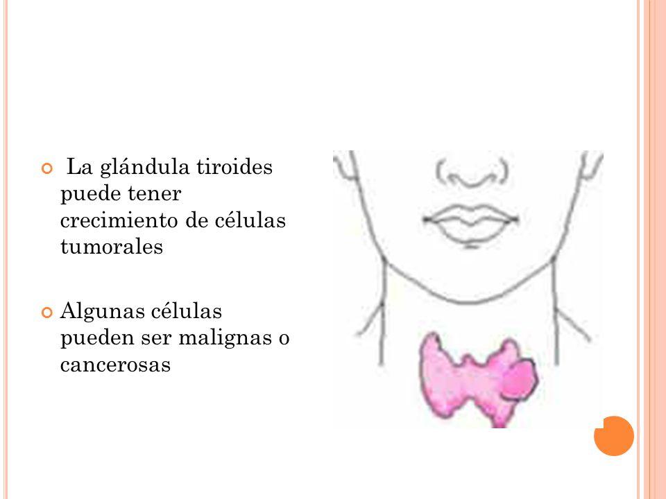 La glándula tiroides puede tener crecimiento de células tumorales Algunas células pueden ser malignas o cancerosas