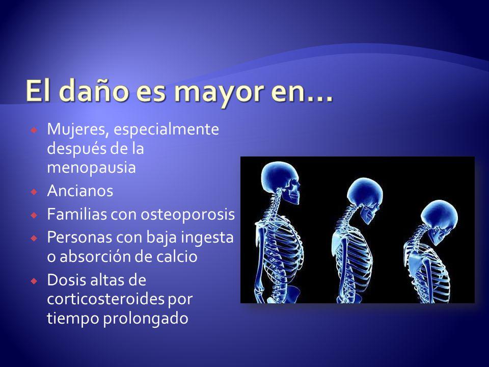 Mujeres, especialmente después de la menopausia Ancianos Familias con osteoporosis Personas con baja ingesta o absorción de calcio Dosis altas de cort