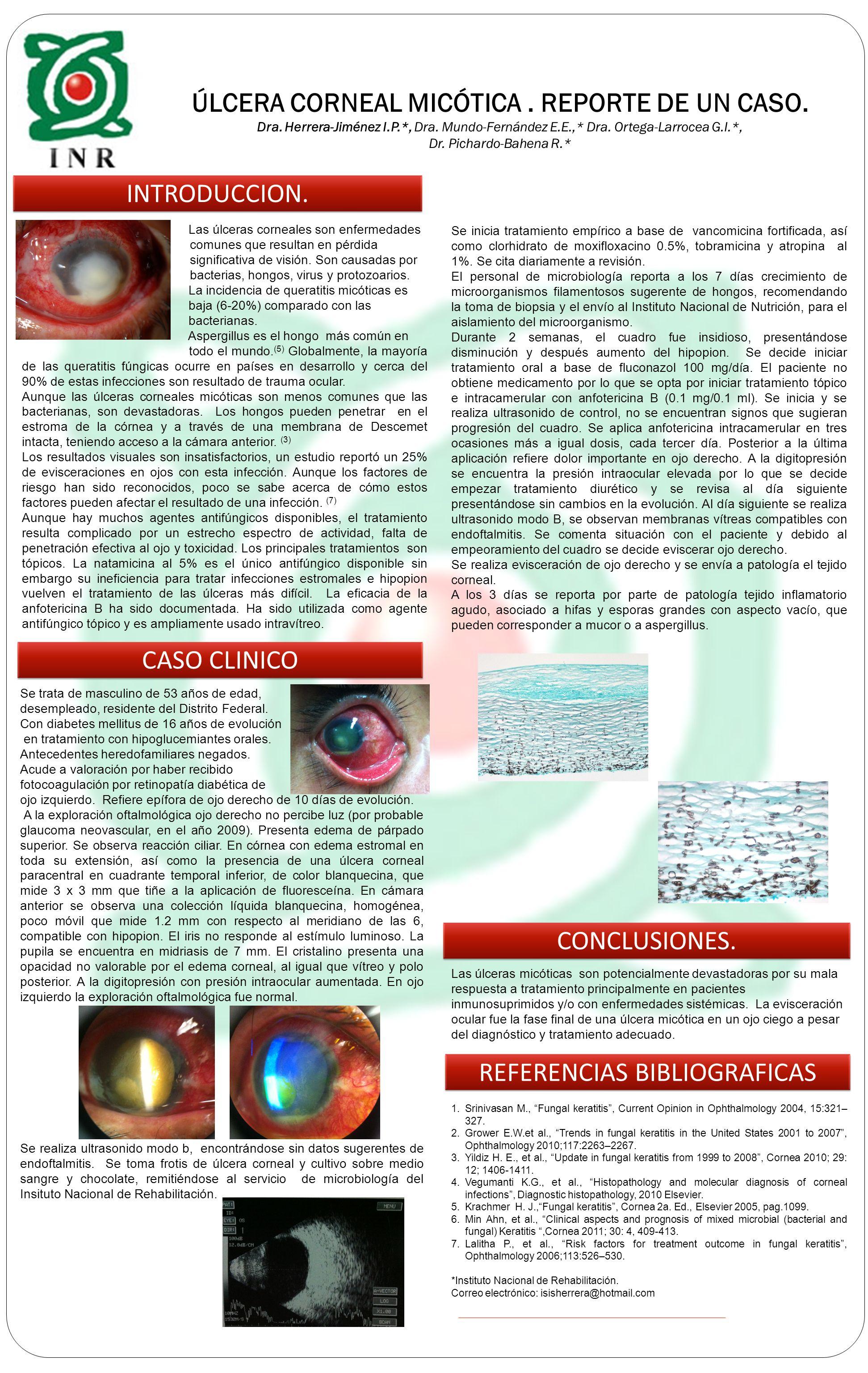 ÚLCERA CORNEAL MICÓTICA.REPORTE DE UN CASO. Dra. Herrera-Jiménez I.P.*, Dra.