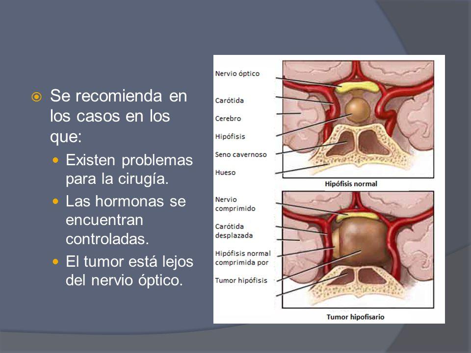 Se recomienda en los casos en los que: Existen problemas para la cirugía. Las hormonas se encuentran controladas. El tumor está lejos del nervio óptic