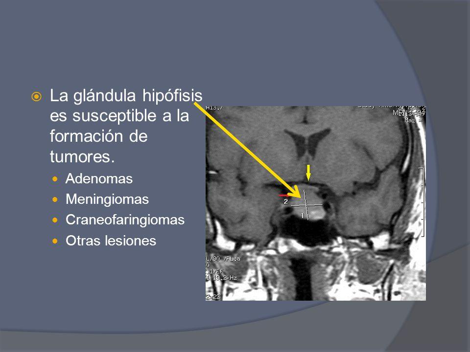 La glándula hipófisis es susceptible a la formación de tumores. Adenomas Meningiomas Craneofaringiomas Otras lesiones