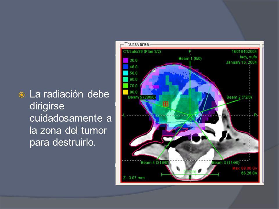 La radiación debe dirigirse cuidadosamente a la zona del tumor para destruirlo.