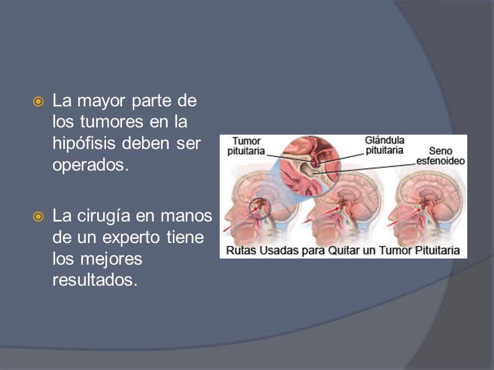 La mayor parte de los tumores en la hipófisis deben ser operados. La cirugía en manos de un experto tiene los mejores resultados.
