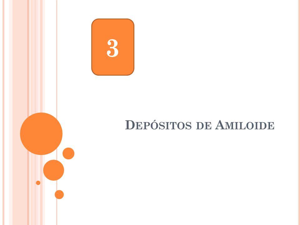 D EPÓSITOS DE A MILOIDE 3