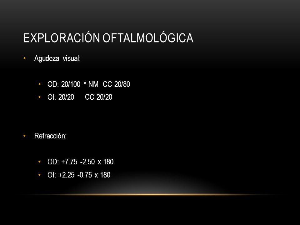 EXPLORACIÓN OFTALMOLÓGICA Agudeza visual: OD: 20/100 * NM CC 20/80 OI: 20/20 CC 20/20 Refracción: OD: +7.75 -2.50 x 180 OI: +2.25 -0.75 x 180