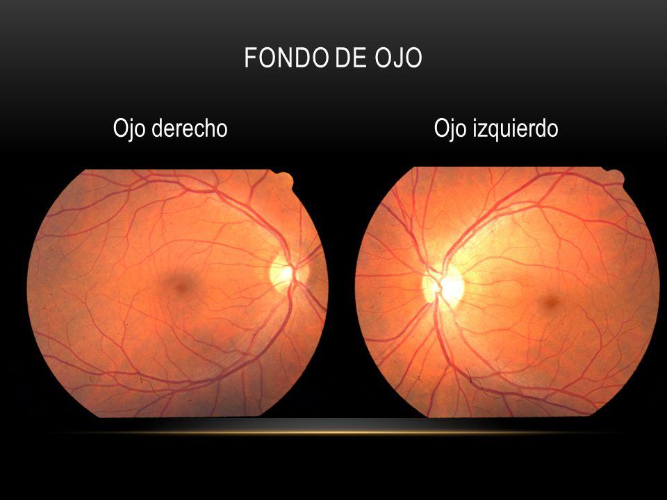 FONDO DE OJO Ojo derechoOjo izquierdo