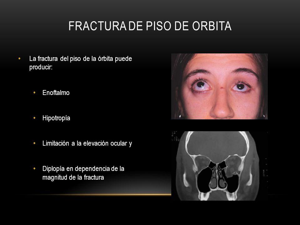 FRACTURA DE PISO DE ORBITA La fractura del piso de la órbita puede producir: Enoftalmo Hipotropía Limitación a la elevación ocular y Diplopía en depen
