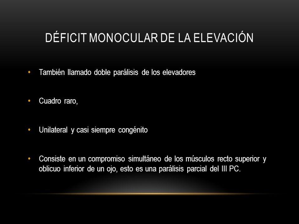 DÉFICIT MONOCULAR DE LA ELEVACIÓN También llamado doble parálisis de los elevadores Cuadro raro, Unilateral y casi siempre congénito Consiste en un co