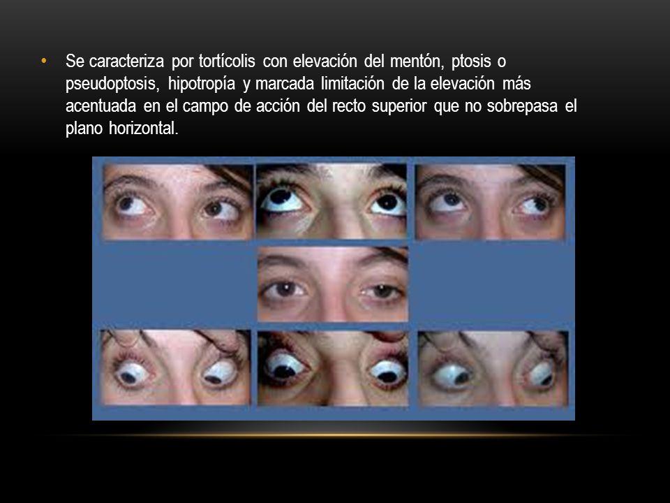 Se caracteriza por tortícolis con elevación del mentón, ptosis o pseudoptosis, hipotropía y marcada limitación de la elevación más acentuada en el cam