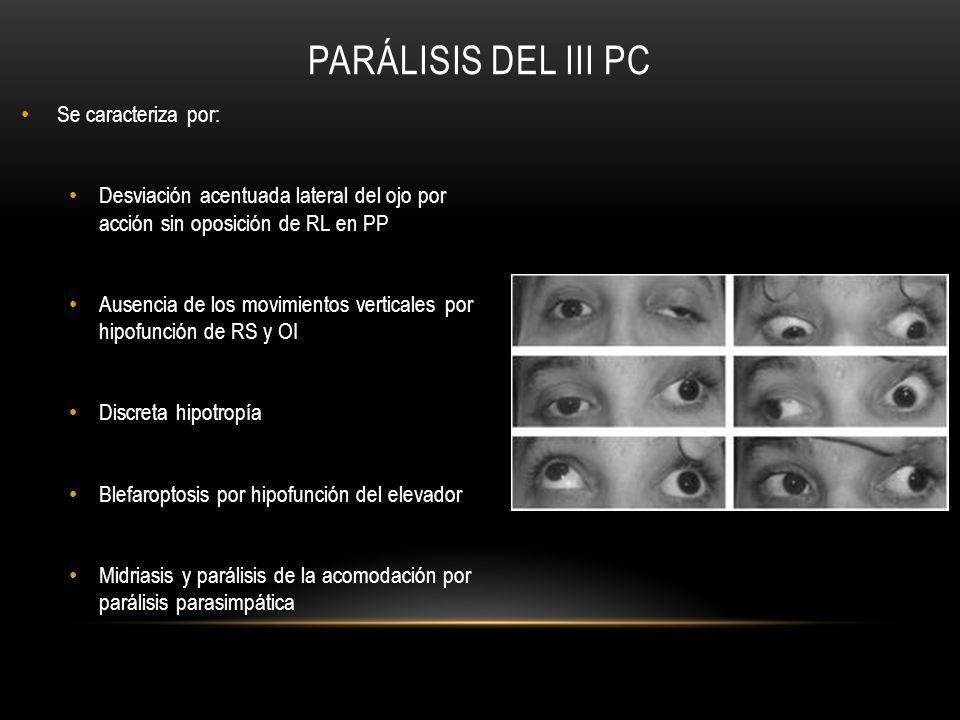 PARÁLISIS DEL III PC Se caracteriza por: Desviación acentuada lateral del ojo por acción sin oposición de RL en PP Ausencia de los movimientos vertica
