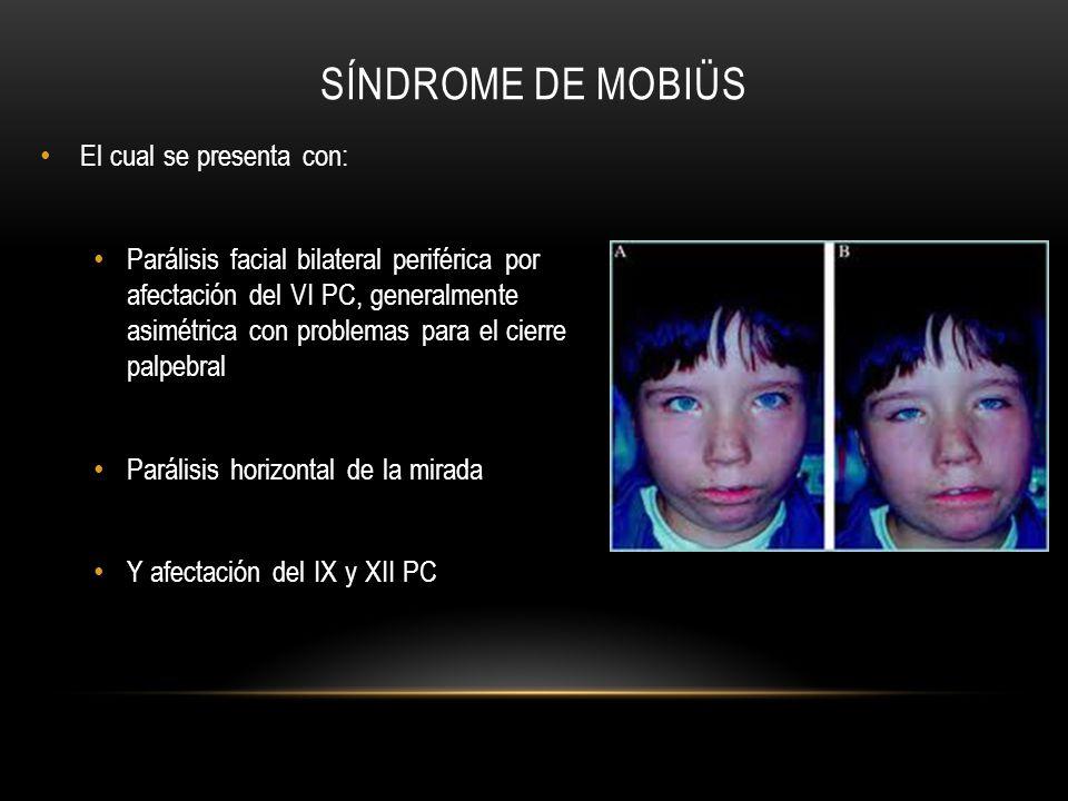 SÍNDROME DE MOBIÜS El cual se presenta con: Parálisis facial bilateral periférica por afectación del VI PC, generalmente asimétrica con problemas para