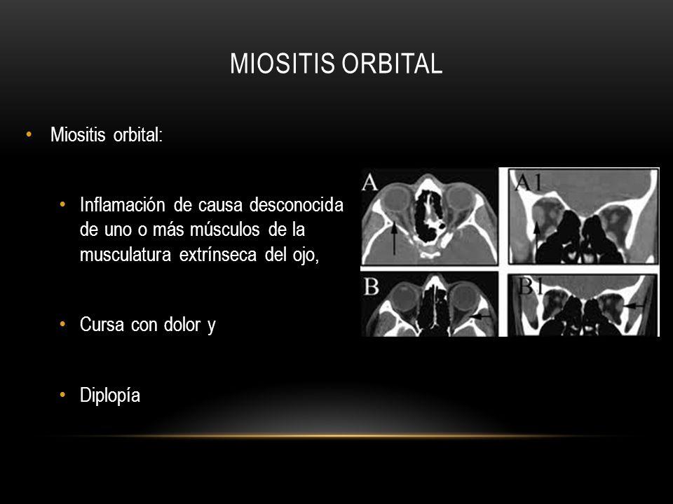 MIOSITIS ORBITAL Miositis orbital: Inflamación de causa desconocida de uno o más músculos de la musculatura extrínseca del ojo, Cursa con dolor y Dipl