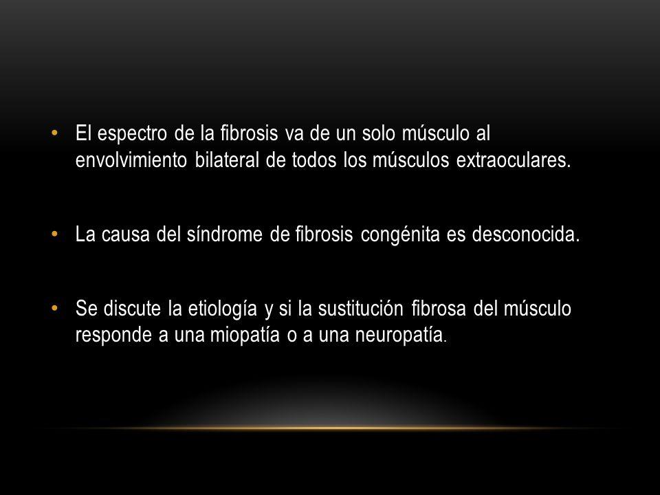 El espectro de la fibrosis va de un solo músculo al envolvimiento bilateral de todos los músculos extraoculares. La causa del síndrome de fibrosis con