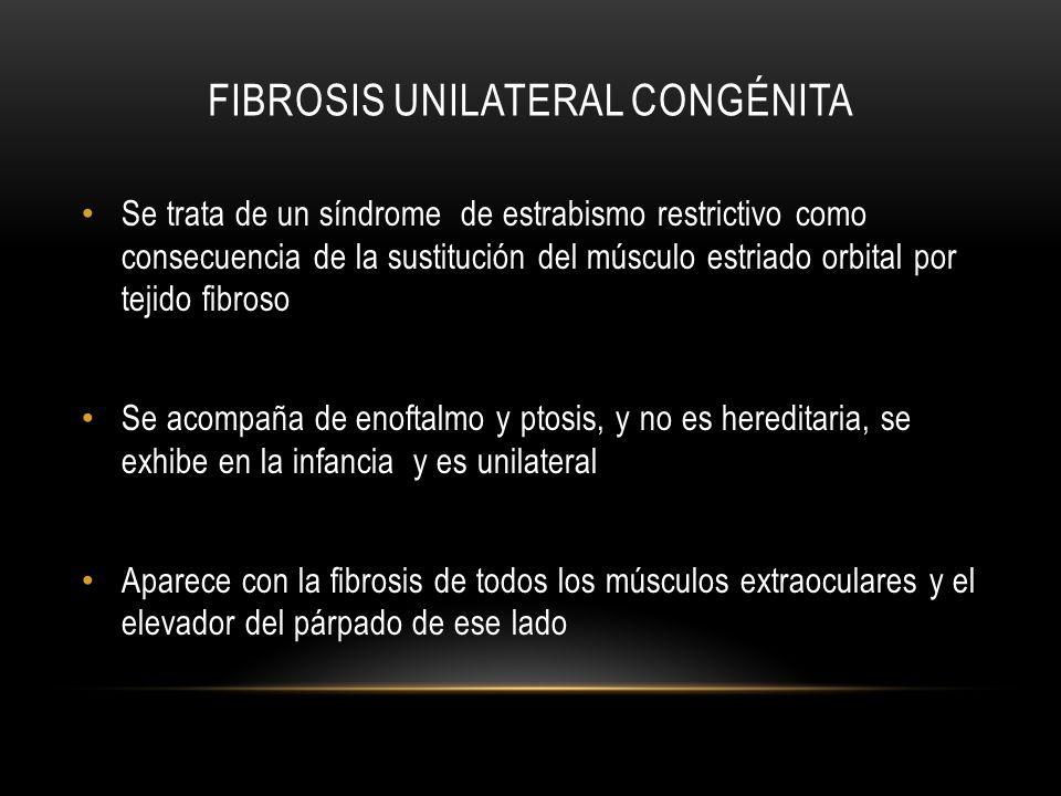 FIBROSIS UNILATERAL CONGÉNITA Se trata de un síndrome de estrabismo restrictivo como consecuencia de la sustitución del músculo estriado orbital por t