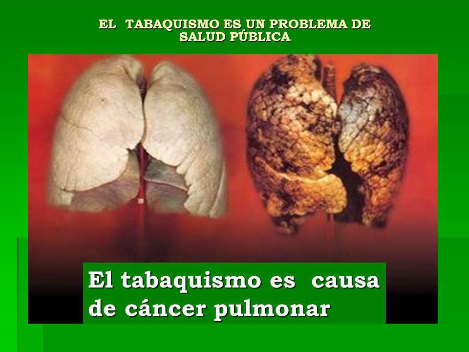 EL TABAQUISMO ES UN PROBLEMA DE SALUD PÚBLICA El tabaquismo es causa de cáncer pulmonar