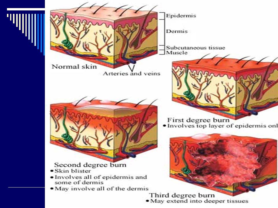 AGENTES QUE AFECTAN A LA PIEL Biológicos: - Virus: causantes de exantemas (sarampión, varicela, rubéola, herpes zoster, etc.) - Bacterias: piodermias, lepra, etc.