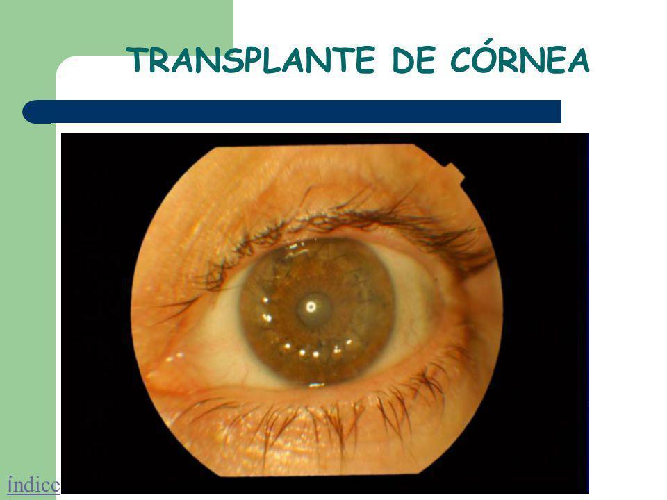 TRANSPLANTE DE CÓRNEA Este transplante consiste en la sustitución del tejido corneal opaco por el tejido corneal sano de un donante humano cadáver. El