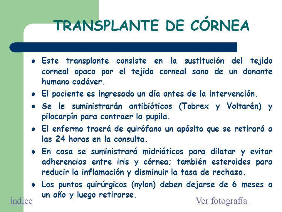 TRANSPLANTE DE CÓRNEA Este transplante consiste en la sustitución del tejido corneal opaco por el tejido corneal sano de un donante humano cadáver.