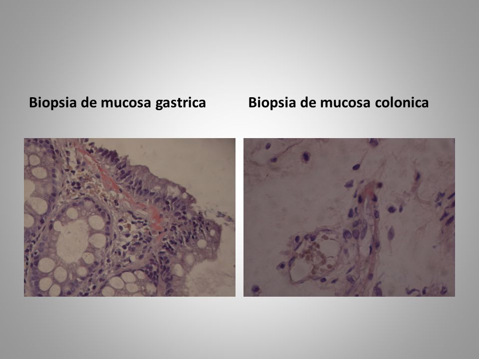 Biopsia de mucosa gastrica Biopsia de mucosa colonica