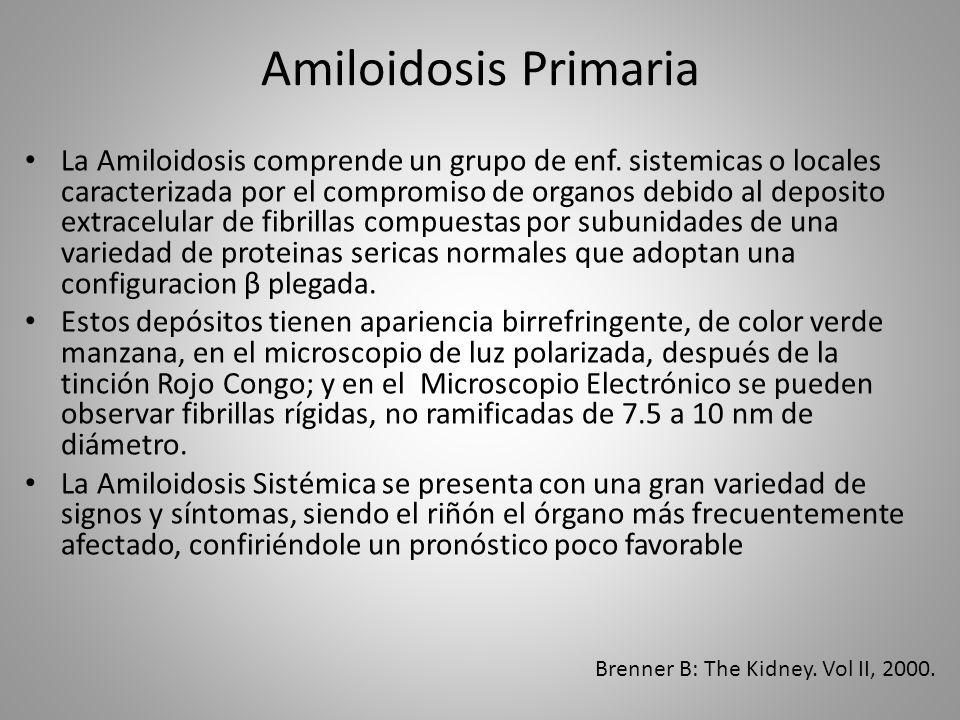 Amiloidosis Primaria La Amiloidosis comprende un grupo de enf. sistemicas o locales caracterizada por el compromiso de organos debido al deposito extr