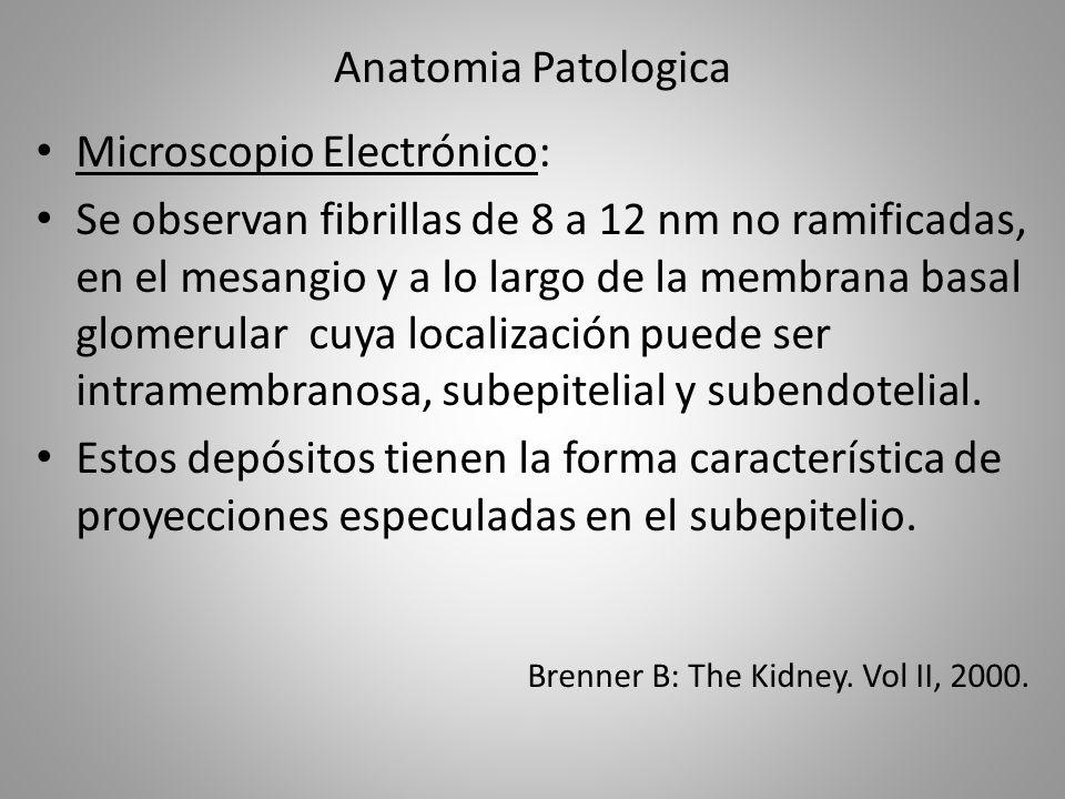Anatomia Patologica Microscopio Electrónico: Se observan fibrillas de 8 a 12 nm no ramificadas, en el mesangio y a lo largo de la membrana basal glome