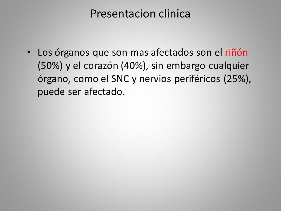 Presentacion clinica Los órganos que son mas afectados son el riñón (50%) y el corazón (40%), sin embargo cualquier órgano, como el SNC y nervios peri