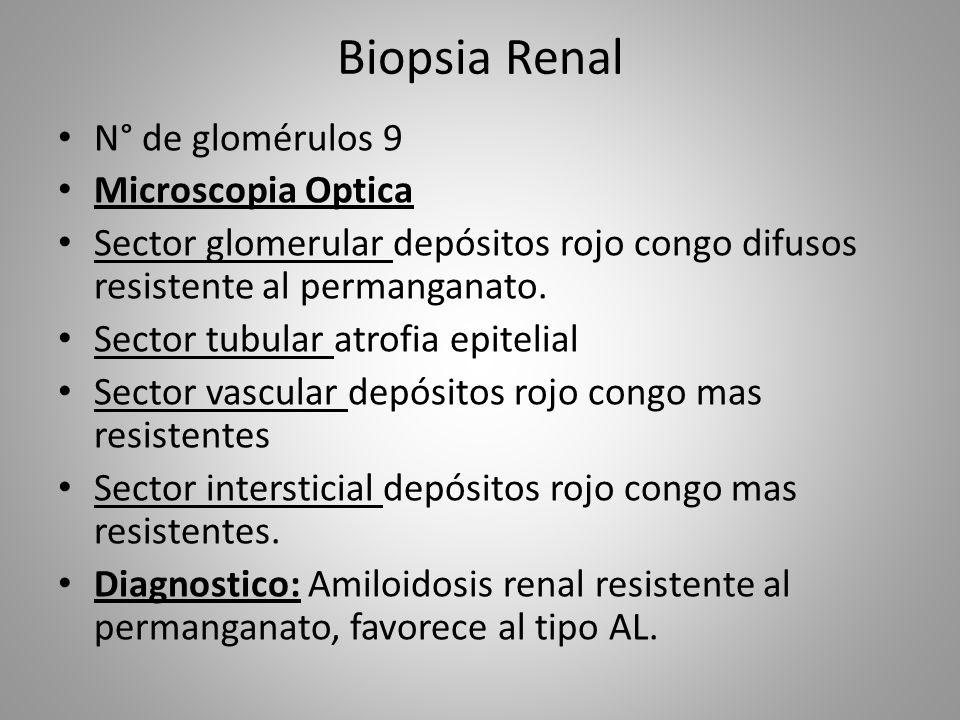 Biopsia Renal N° de glomérulos 9 Microscopia Optica Sector glomerular depósitos rojo congo difusos resistente al permanganato. Sector tubular atrofia