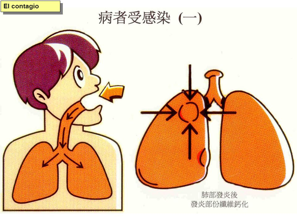Pulmón enfermo