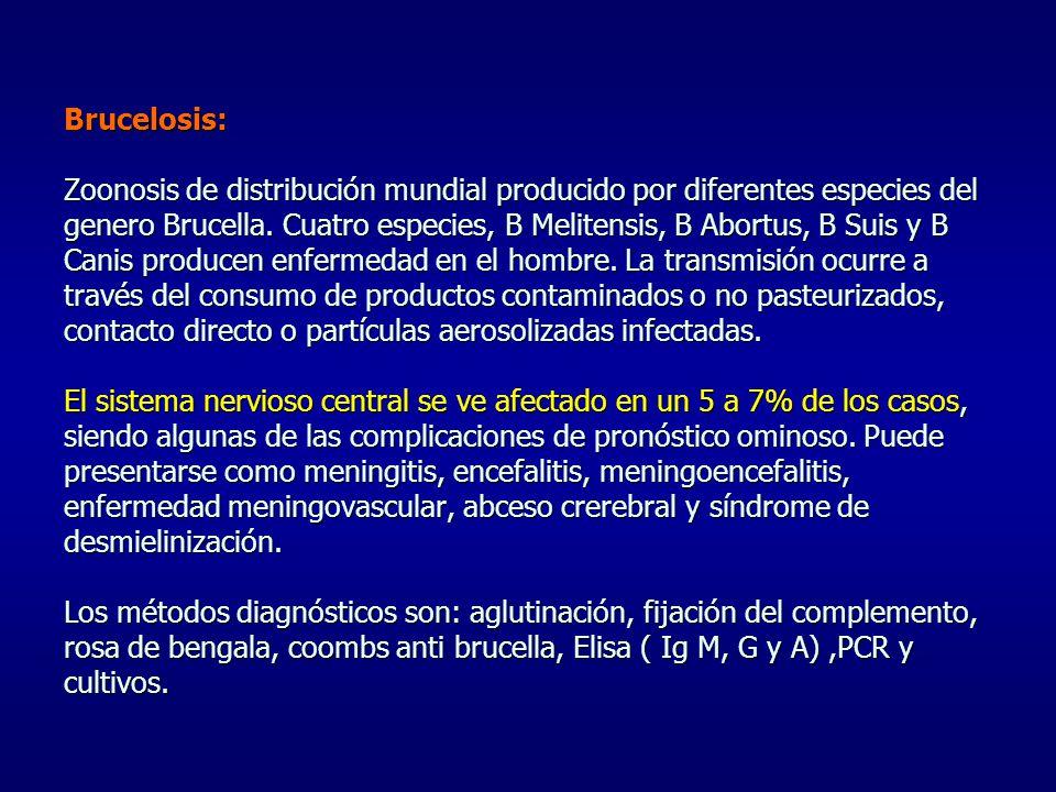 Brucelosis: Zoonosis de distribución mundial producido por diferentes especies del genero Brucella. Cuatro especies, B Melitensis, B Abortus, B Suis y
