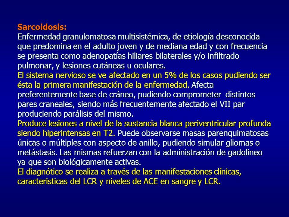 Sarcoidosis: Enfermedad granulomatosa multisistémica, de etiología desconocida que predomina en el adulto joven y de mediana edad y con frecuencia se