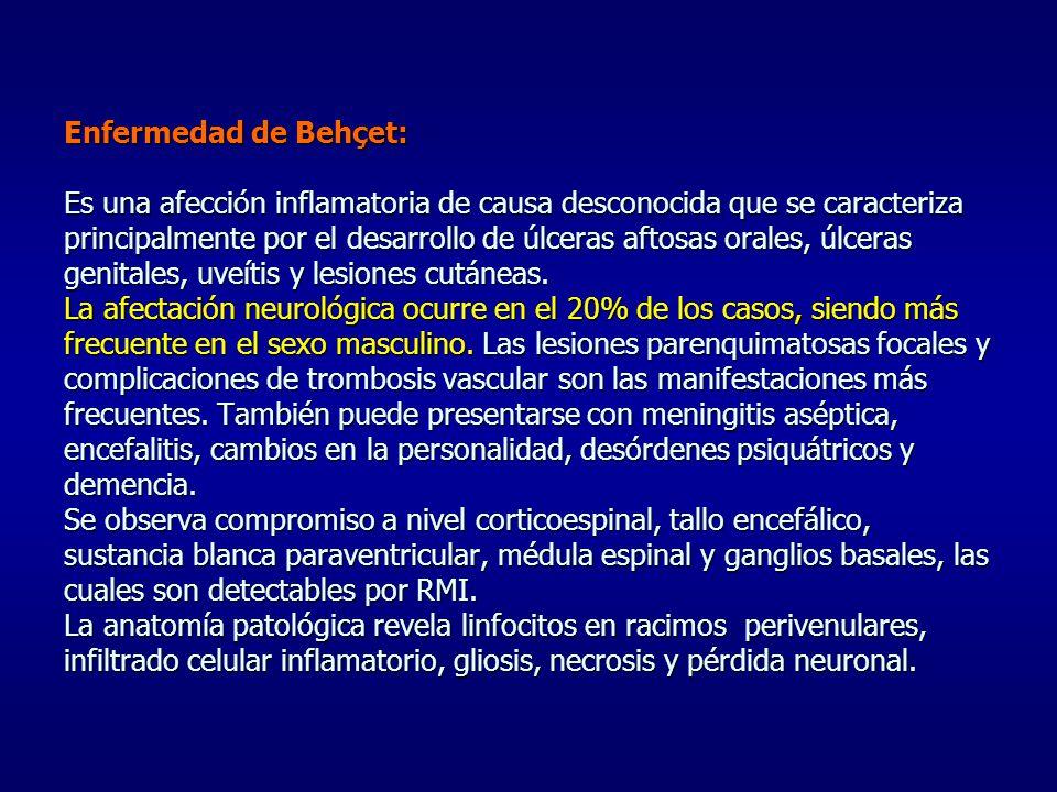 Enfermedad de Behçet: Es una afección inflamatoria de causa desconocida que se caracteriza principalmente por el desarrollo de úlceras aftosas orales,