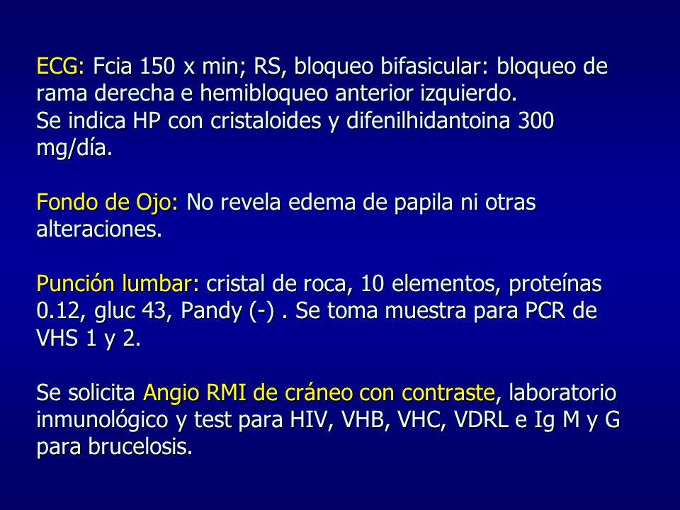 ECG: Fcia 150 x min; RS, bloqueo bifasicular: bloqueo de rama derecha e hemibloqueo anterior izquierdo. Se indica HP con cristaloides y difenilhidanto