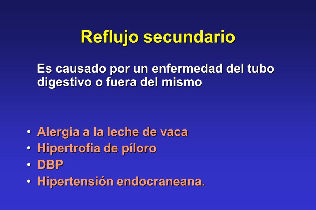 Reflujo secundario Es causado por un enfermedad del tubo digestivo o fuera del mismo Es causado por un enfermedad del tubo digestivo o fuera del mismo