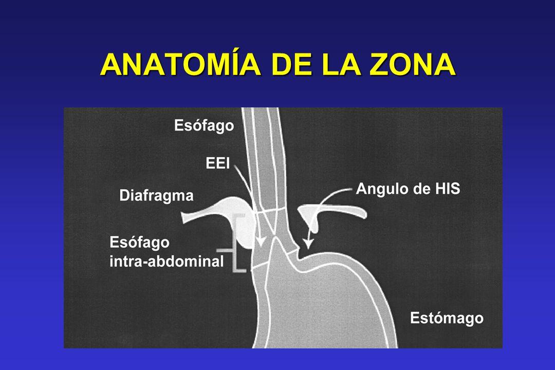 Zona de alta presión EEI: Controla el flujo intraluminal entre el esófago y el estómago y sirve como barrera física para impedir el RGE El diafragma crural actual como esfinter externo