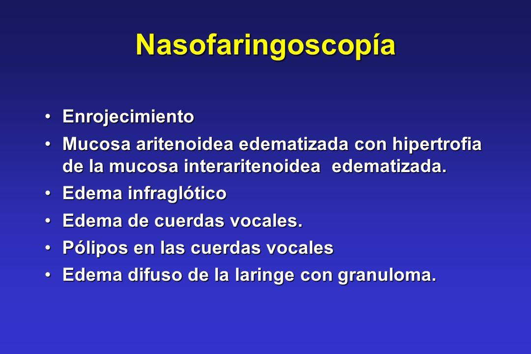 Nasofaringoscopía EnrojecimientoEnrojecimiento Mucosa aritenoidea edematizada con hipertrofia de la mucosa interaritenoidea edematizada.Mucosa ariteno