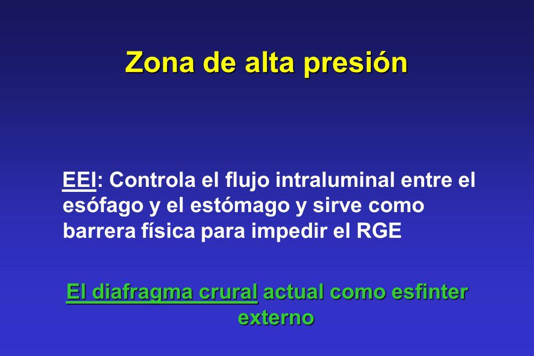 Zona de alta presión EEI: Controla el flujo intraluminal entre el esófago y el estómago y sirve como barrera física para impedir el RGE El diafragma c