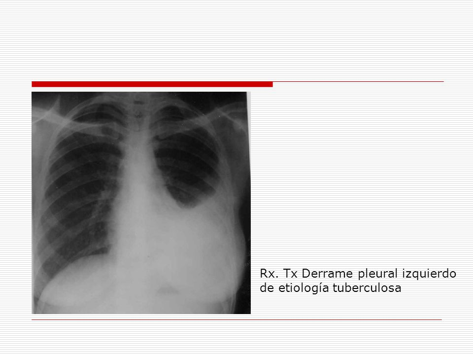 Rx. Tx Derrame pleural izquierdo de etiología tuberculosa